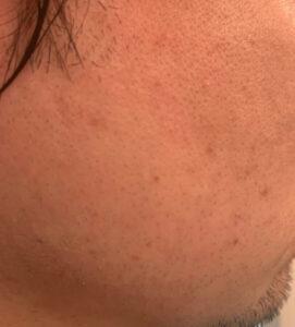 ガレイドシェービングメンバーの剃り味を試してみた口コミ(2週目)