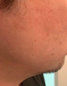 1週目の剃り具合